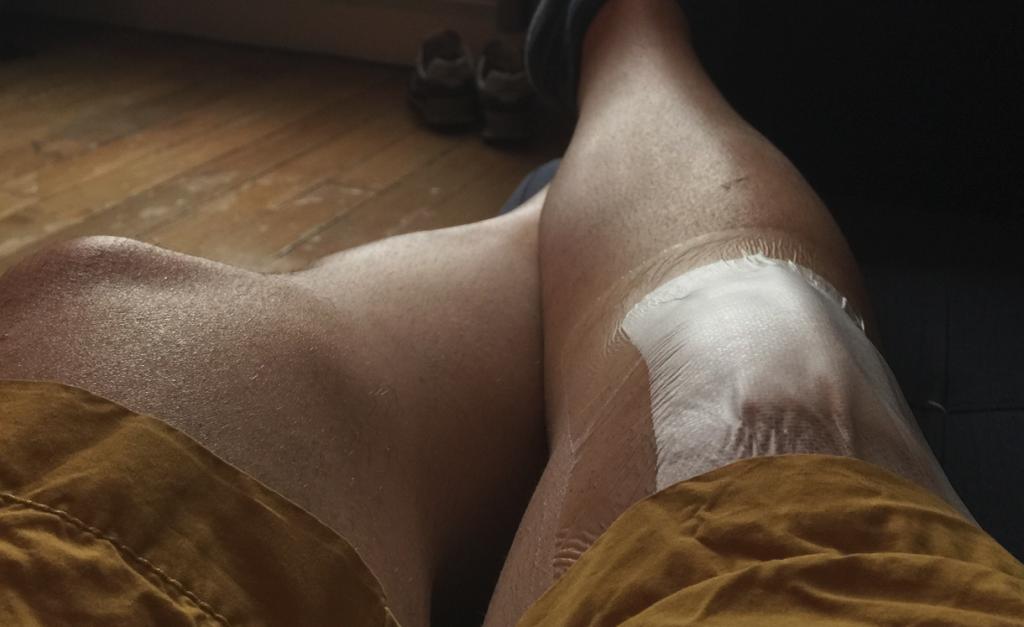 Le pansement après l'hygroma au genou
